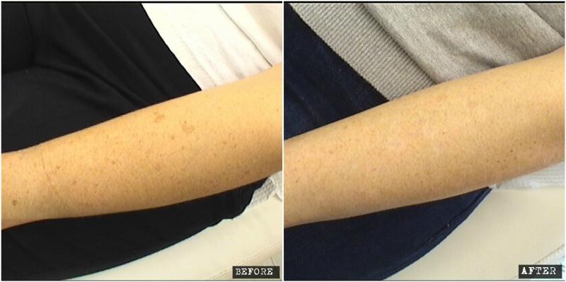 Age spots laser treatment