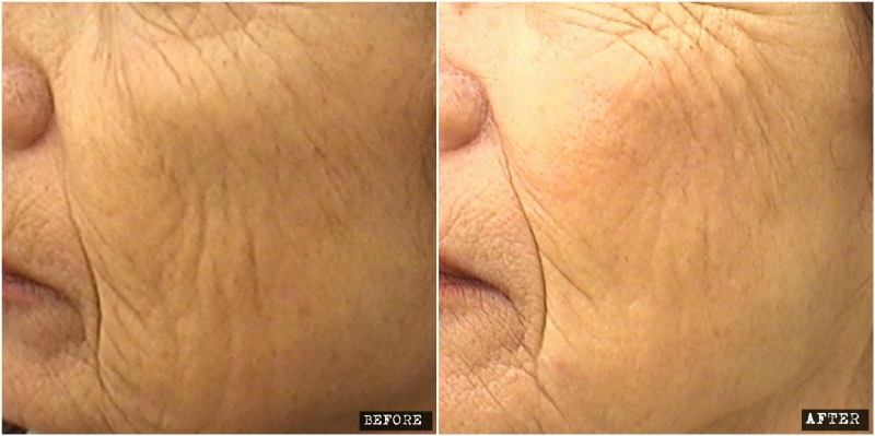 Fractional CO2 Laser for facial rejuvenation