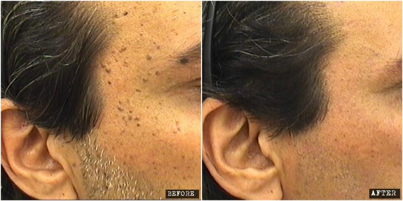 Seb ker laser removal