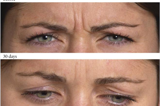 Ρυτίδες έκφρασης στην περιοχή του μεσοφρύου, πρίν και μετά τη θεραπεία με Botox. (Από την συλλογή της Allergan)