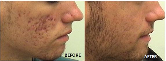 acne-ba-2